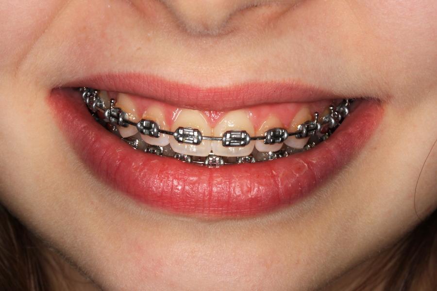 Orthodontiste Courbevoie Orthodontie Exclusive Docteur